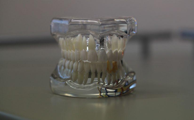 Zła sposób odżywiania się to większe ubytki w zębach a także ich zgubę